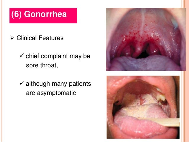 New sexually transmitted disease gonorrhea throat