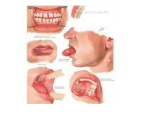 Bacterial infections of mouth