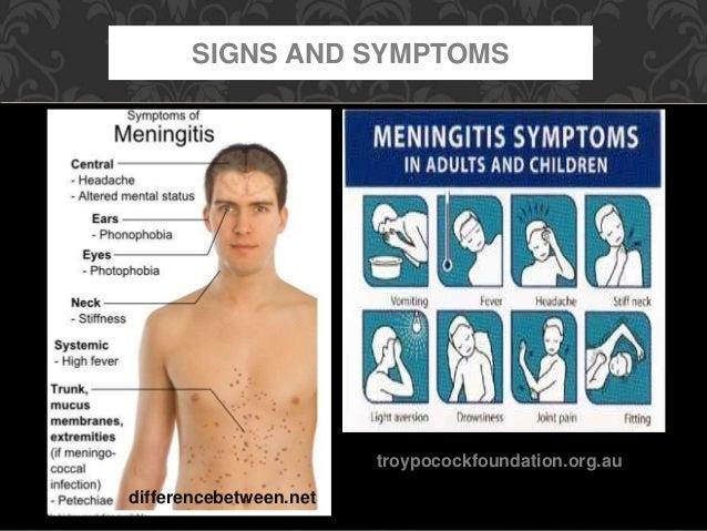 bacterial meningitis in adults