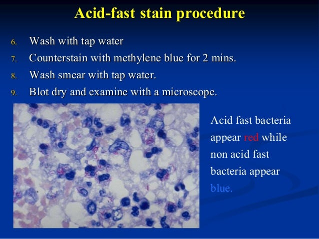 types and procedure of staining You are here: histology guide  what is histology  histological stains histological stains other than h&e basic dyes this a specific type of stain.
