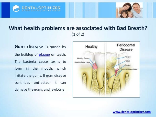 bad breath - causes and cures, Human Body