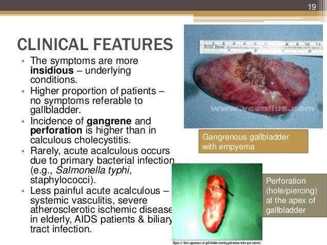 cholecystitis & carcinoma of gallbladder, Human Body