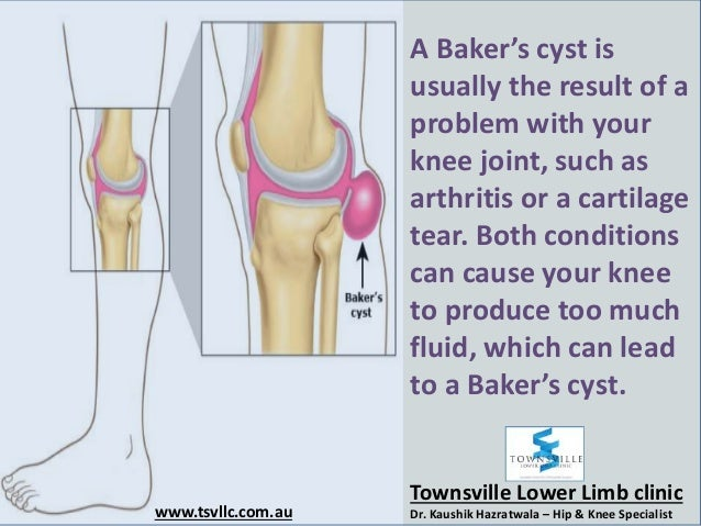 how to get rid of bakers cyst