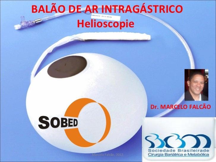 BALÃO DE AR INTRAGÁSTRICO Helioscopie  Dr. MARCELO FALCÃO Marcelo Falcão, 2012.