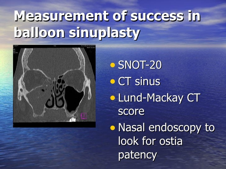 Balloon Sinuplasty Slides 091216