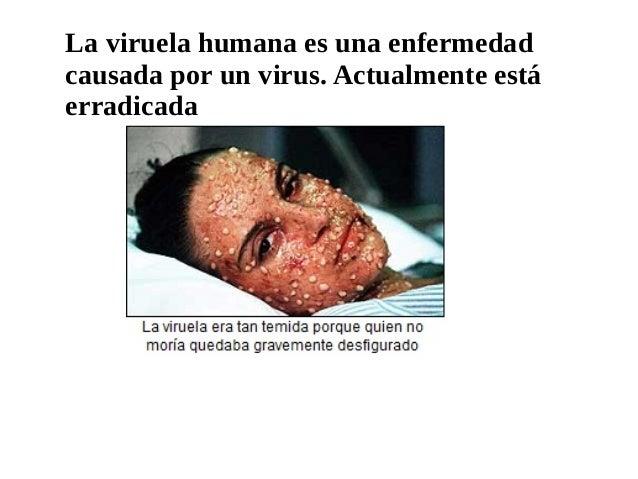 La viruela humana es una enfermedad causada por un virus. Actualmente está erradicada
