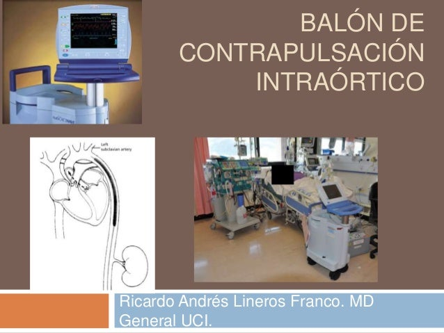 BALÓN DE CONTRAPULSACIÓN INTRAÓRTICO Ricardo Andrés Lineros Franco. MD General UCI.