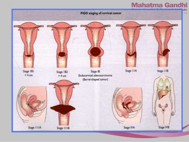 CERVIX CANCER IN NUTSHELL
