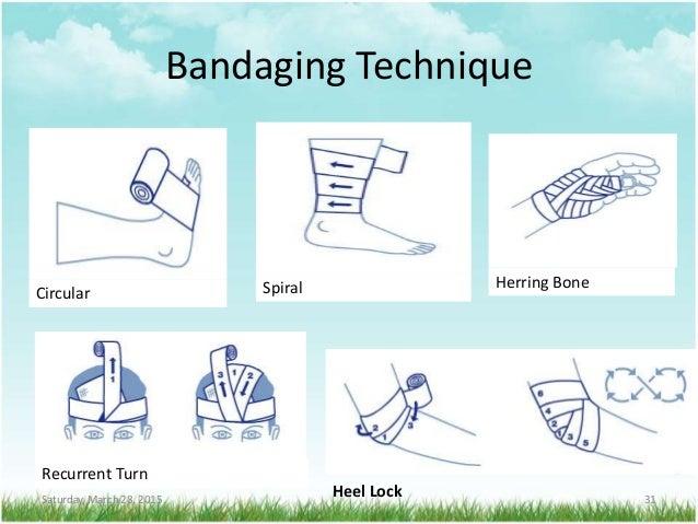 Bandaging Technique Saturday, March 28, 2015 31 Circular Spiral Herring Bone Recurrent Turn Heel Lock