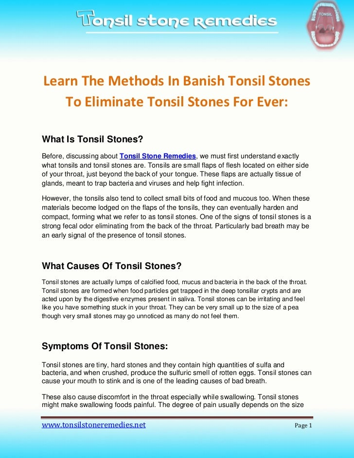 Learn The Methods In Banish Tonsil Stones   To Eliminate Tonsil Stones For Ever:What Is Tonsil Stones?Before, discussing a...