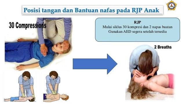 Posisi tangan dan Bantuan nafas pada RJP Anak RJP Mulai siklus 30 kompresi dan 2 napas buatan Gunakan AED segera setelah t...