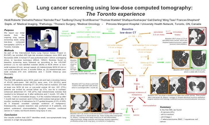 Lung cancer screening using low-dose computed tomography:  The Toronto experience Heidi   Roberts 1   Demetris   Patsios 1...