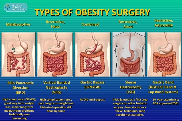 obesity and gastric bypass surgery Gastric bypass is one of the three most common types of weight loss (bariatric) surgery carried out in the uk find out more today from bupa uk.