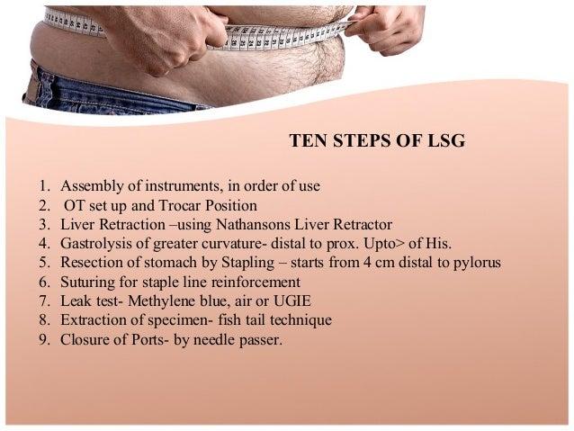 Bariatric Surgery Ppt O Amp G