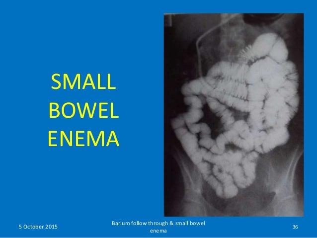 barium meal follow through procedure pdf