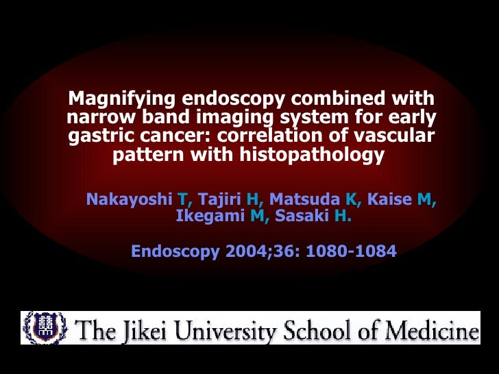 <ul><ul><li>Magnifying endoscopy combined with narrow band imaging system for early gastric cancer: correlation of vascula...