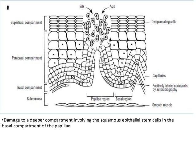 15  •barrett esophagus
