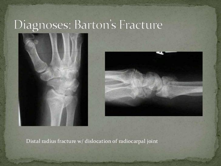Barton S Fracture