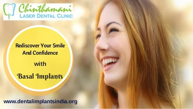 Basal Implants Rediscover Your Smile And Confidence with www.dentalimplantsindia.org