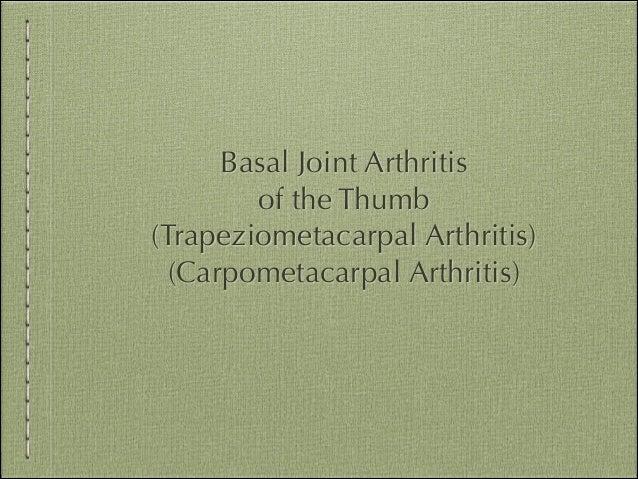 Basal Joint Arthritis of the Thumb (Trapeziometacarpal Arthritis) (Carpometacarpal Arthritis)