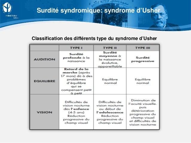 Classification des différents type du syndrome d'Usher Surdité syndromique: syndrome d'Usher