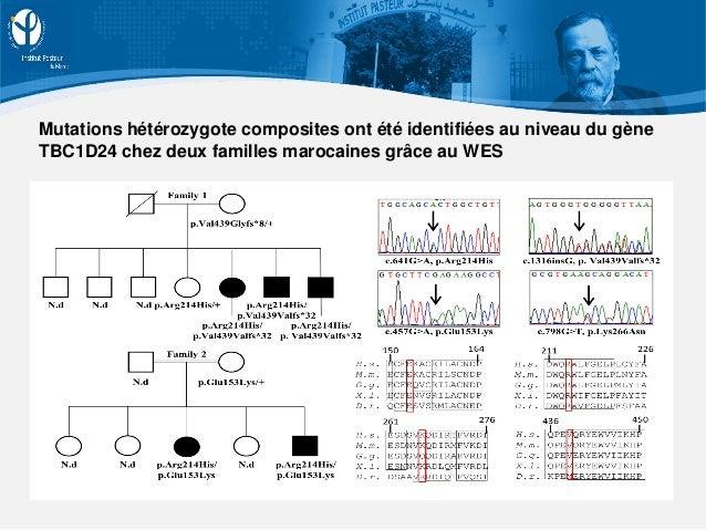 Mutations hétérozygote composites ont été identifiées au niveau du gène TBC1D24 chez deux familles marocaines grâce au WES