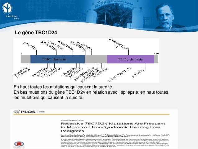 En haut toutes les mutations qui causent la surdité. En bas mutations du gène TBC1D24 en relation avec l'épilepsie, en hau...