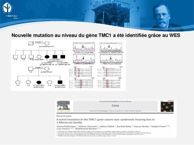 Nouvelle mutation au niveau du gène TMC1 a été identifiée grâce au WES