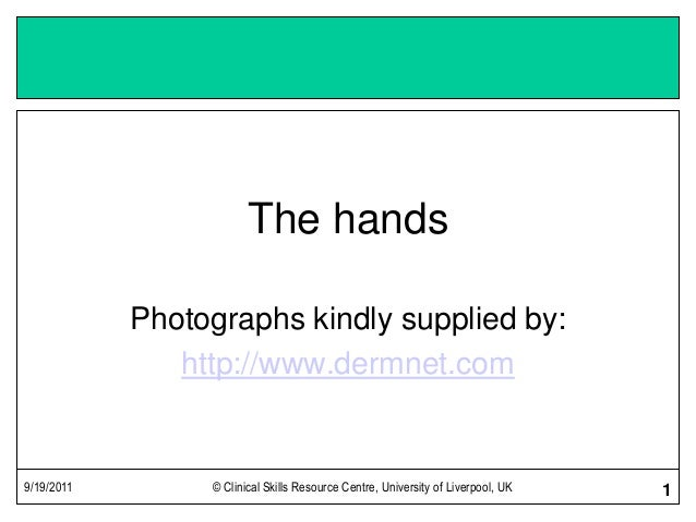 9/19/2011 © Clinical Skills Resource Centre, University of Liverpool, UK 1 The hands Photographs kindly supplied by: http:...