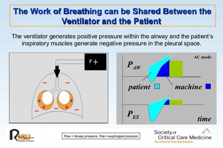 Mechanical Ventilation Made Easy Pdf
