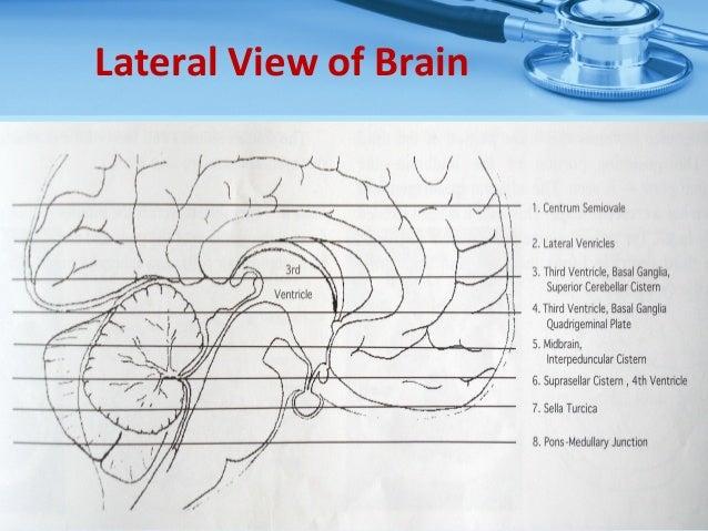 Basic ct brain and rapid ct interpretation basal ganglia 12 ccuart Gallery