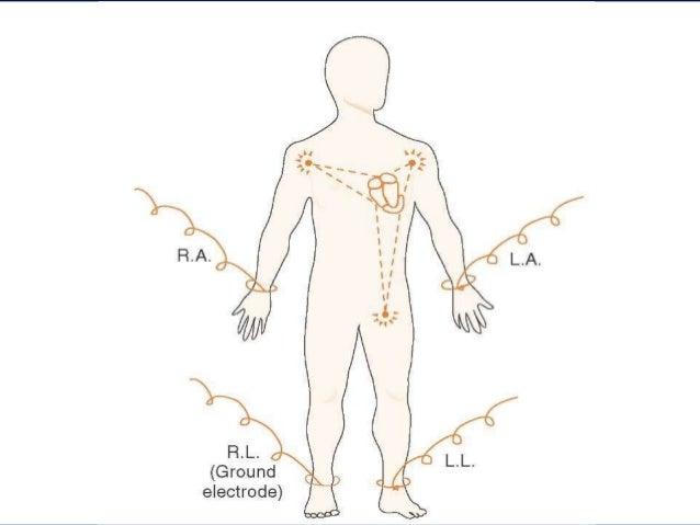 Basic Electrocardiography And Beyond