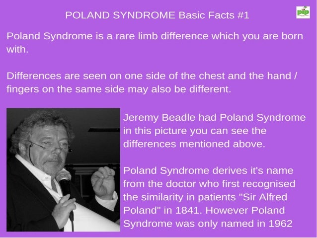 an analysis of the polands syndrome Clinical analysis of 113 patients with poland syndrome poland syndrome is a rare congenital anomaly characterized by the partial or you have poland's syndrome.