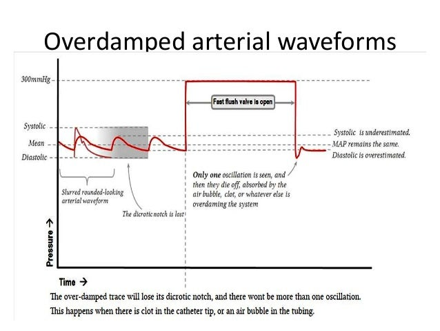 Art Line Underdamped : Square wave test arterial line pictures to pin on