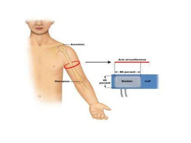 haemodynamic monitoring Invasive hemodynamic monitoring is used in some facilities for invasive monitoring, specialized equipment is necessary, including: • a cvp, pulmonary artery, or arterial catheter, which is introduced into the appropriate blood vessel or heart cham-ber.