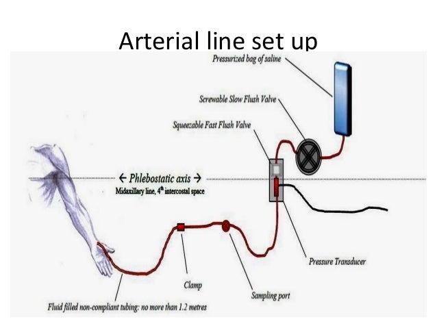 A Line Arterial Monitoring : Arterial line set up related keywords