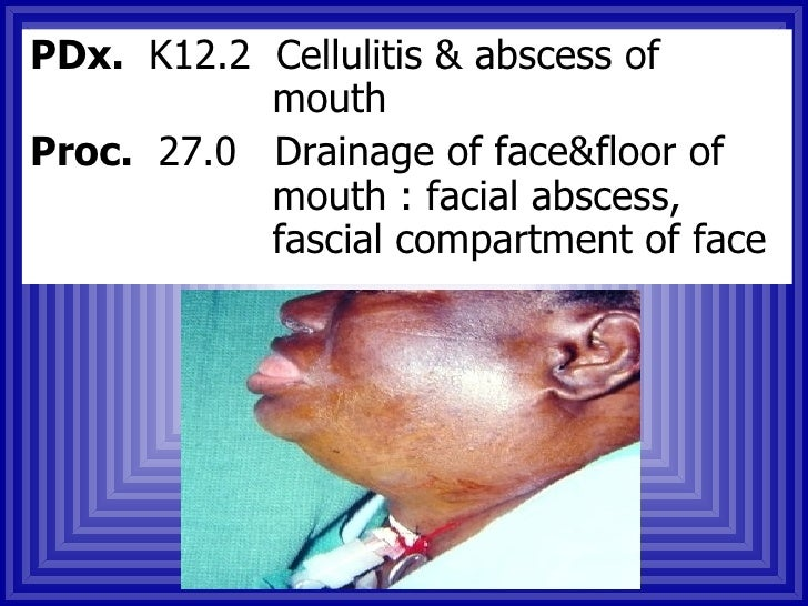 Facial Fractures Icd9