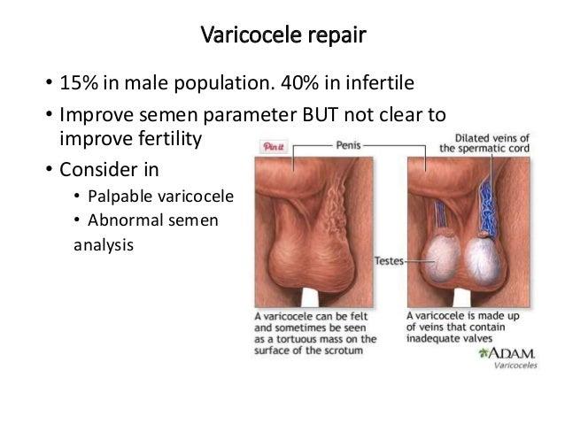 Chemo sperm infertile