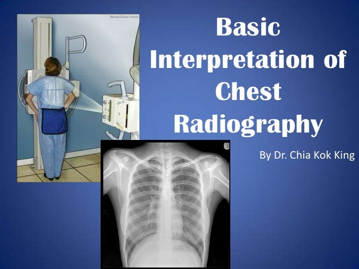 Basic Interpretation of Chest Radiography<br />By Dr. ChiaKok King<br />