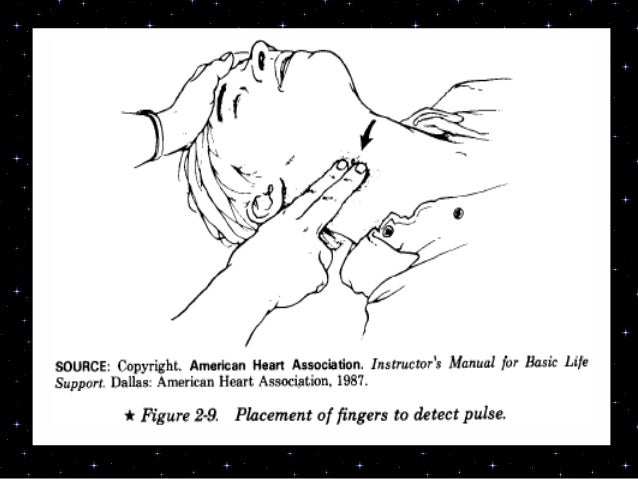 EARLY CPRSequence of cardiopulmonaryresuscitation (CPR)Compression – Airway- Breathing-DefibrillationC-A-B-D