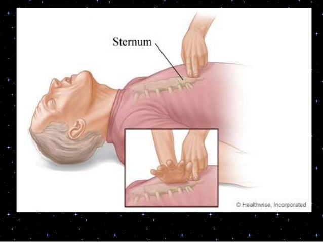 Placement of AED pads• Place one AED pad to the right of thesternum, below the clavicle. Place theother pad in the left mi...
