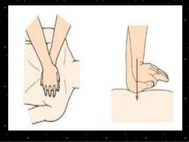 3B. If no shock is indicated:• Resume CPR immediately using a ratio of30 compressions to 2 rescue breaths.Continue as dire...
