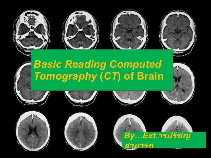 Basic Reading Computed Tomography  ( CT ) of Brain By…Ext. วรปรัชญ์ สามารถ