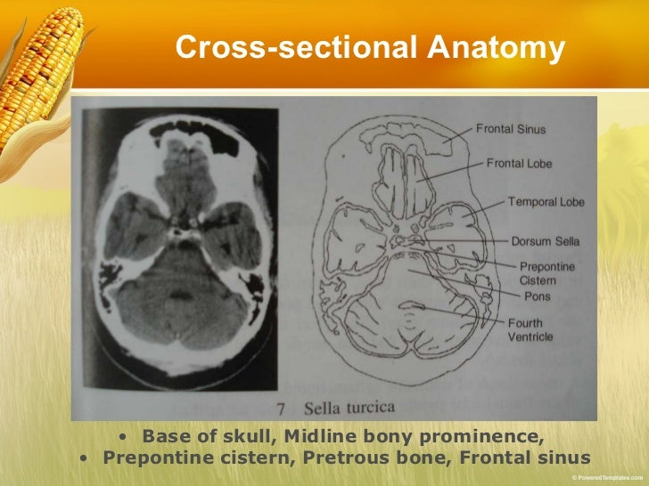 Basic Reading Computed Tomography Ct Of Brain