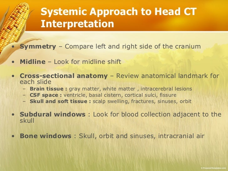 Basic reading computed tomography (ct) of brain Slide 2
