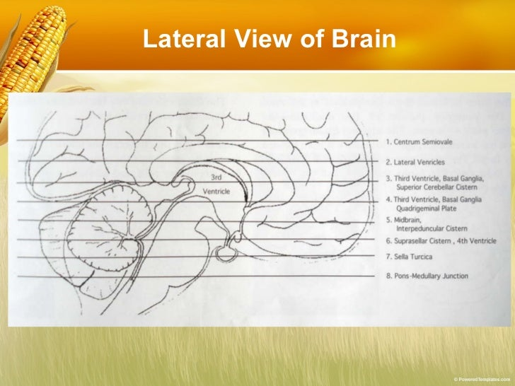 Basic reading computed tomography (ct) of brain Slide 3