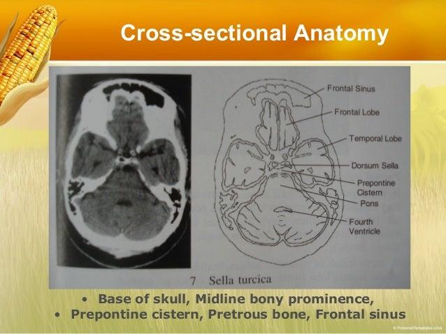 Basic Reading CT Brain..