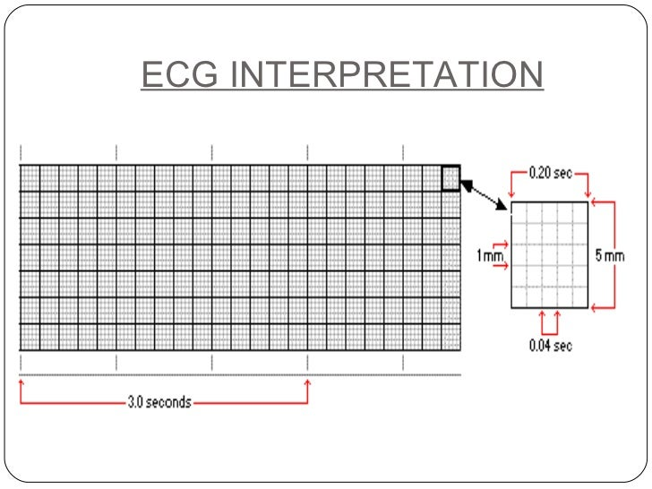 Basics Of Ecg Presentation further Main Electrical Distribution Panel Home together with Schematic Art Ex les moreover 3 Phase Home Wiring also Basic Ladder Diagram. on electrical wiring for dummies