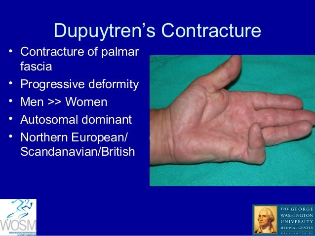 Basics of Hand Surgery