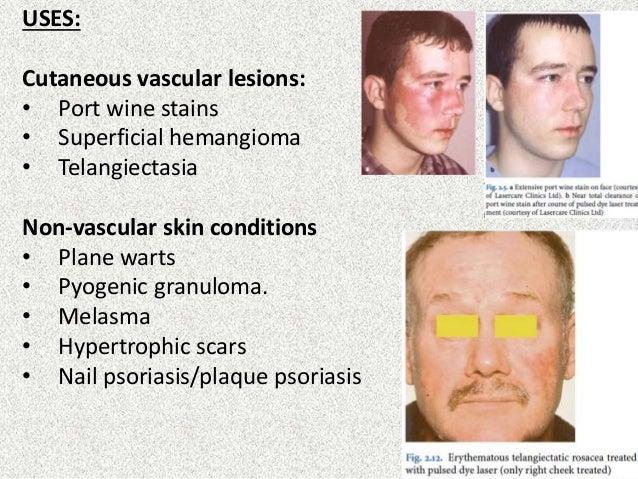 Basics Of Lasers